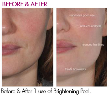 Brightening Peel Before and After